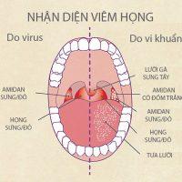 viem_hong
